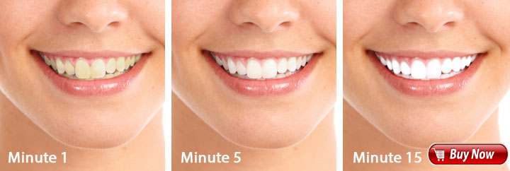 white-light-smile-teeth-art